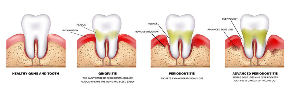 How Our Dentists Treat Periodontal Disease